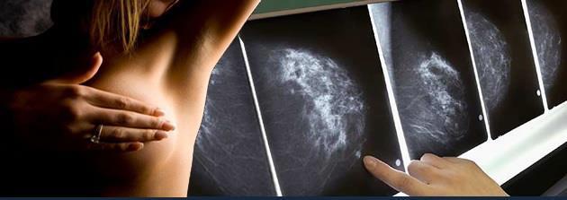 Mamografia Mujer